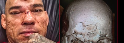 GoFundMe Campaign To Help Evangelista 'Cyborg' Santos With Fractured Skull Hospital Bills